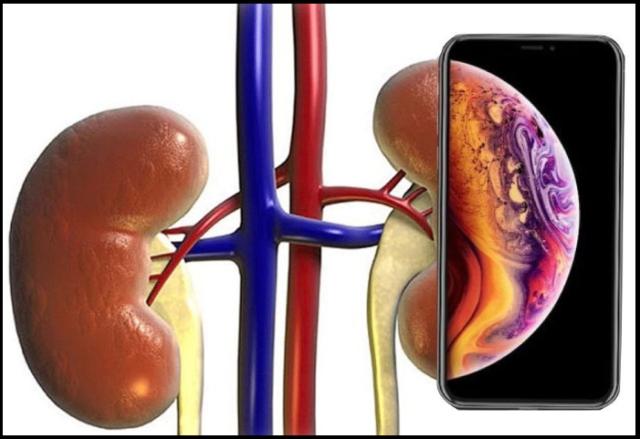 Айфон вместо почки